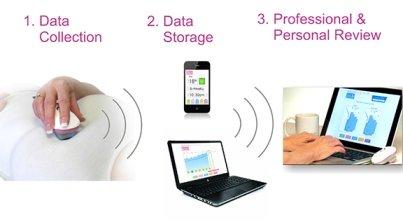 Eclipse: el dispositivo para el seguimiento del cáncer de mama