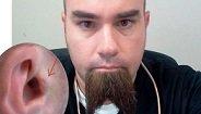 Lo último en auriculares: imanes implantados en el oído