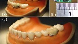Sensor dental para dejar de fumar